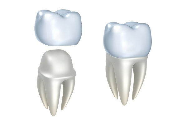 Dental Crowns: How Long Do They Last?
