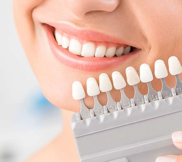 Anderson Dental Veneers and Dental Laminates